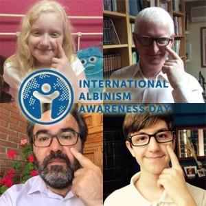 Campanha promovida pela Asociación de Ayuda a Personas com Albinismo (ALBA) para o Dia Internacional de Conscientização sobre o Albinismo.